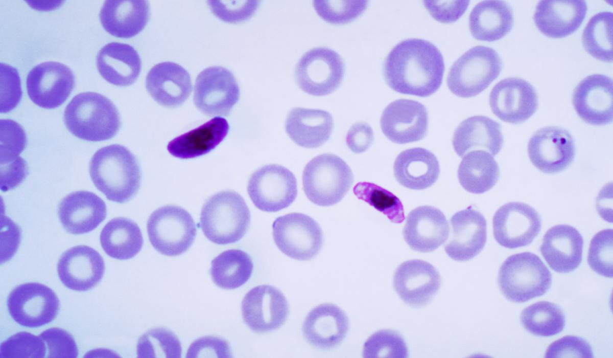 Plasmodium falciparum 1 - 4 bekannte Arten von Malaria, auf die Sie achten müssen