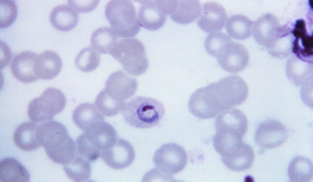 Plasmodium ovale - 4 bekannte Arten von Malaria, auf die Sie achten müssen